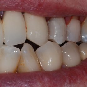 Dental filling after