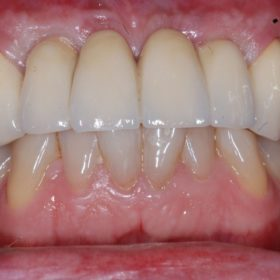 Dental implant surgery after