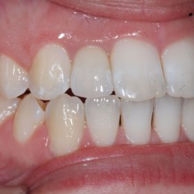 Single tooth implant AFTER